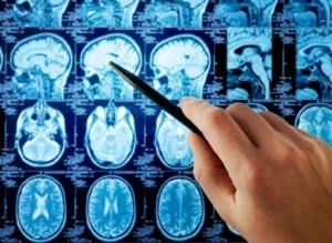 brain-x-ray-390x285